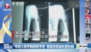 年輕人掰手腕掰斷手臂  都是骨質疏松惹的禍